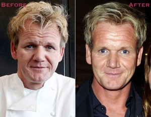 Gordon Ramsay before and after Botox. (Getty images.)